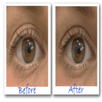Before And After With Eye secrets Eyelid Lift without surgery