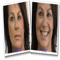 Before And After With Eyelid Lift without surgery