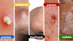 Clear Skin Max Treat all acne types