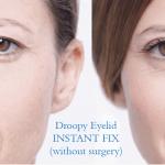 Best Droopy Eyelid Fix (No Surgery): Eye Secrets Eyelid Lift