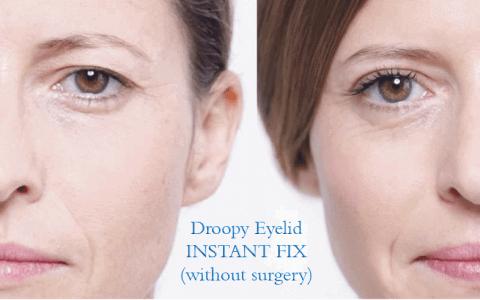 DroopyEyelids_Without_Surgery