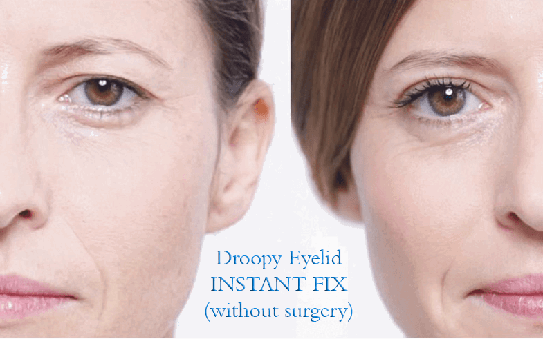 DroopyEyelids_Without_Surgery
