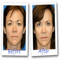 Eyesecrets before and after Removing droopy eyelids instantly without surgery