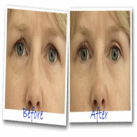 Eyesecrets before and after Removing droopy eyelids instantly