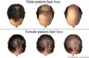 Har vokse - hair growth treatment