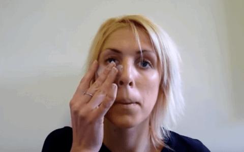Puffy_eyes_Video_Treatment