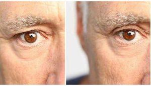 upper_eyelid_lift_without_Surgery_EyeSecrets