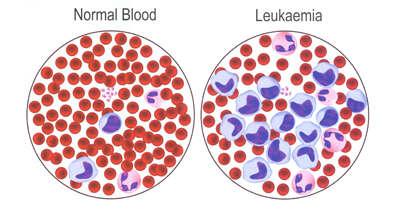 Acai_berry_juice_decrease_leukemia_cells