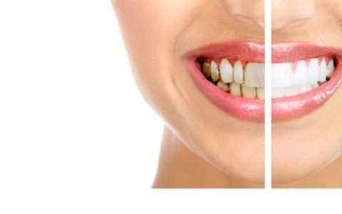 Dental Veneers YummyLooks