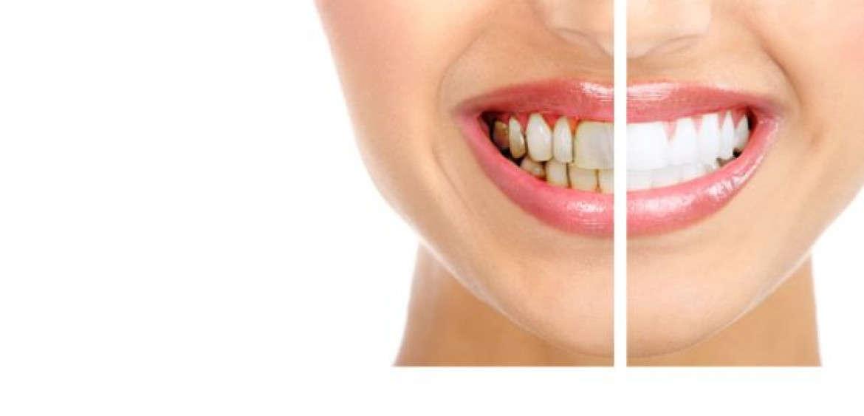 Dental Veneers YummyLooks