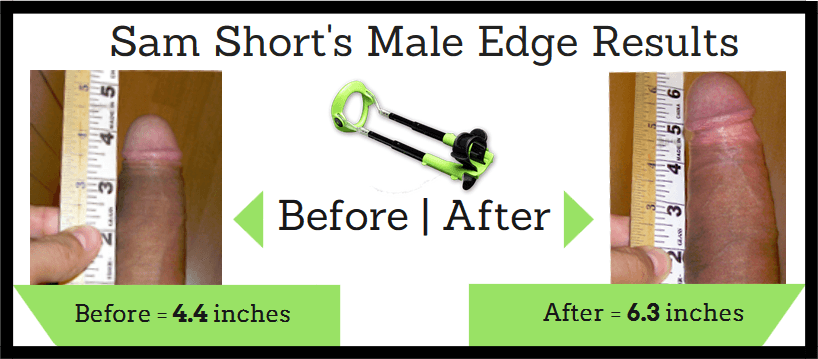 Male-Edge-Results_Before And AFter