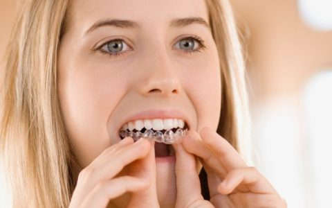 Teeth-Whitening-guide
