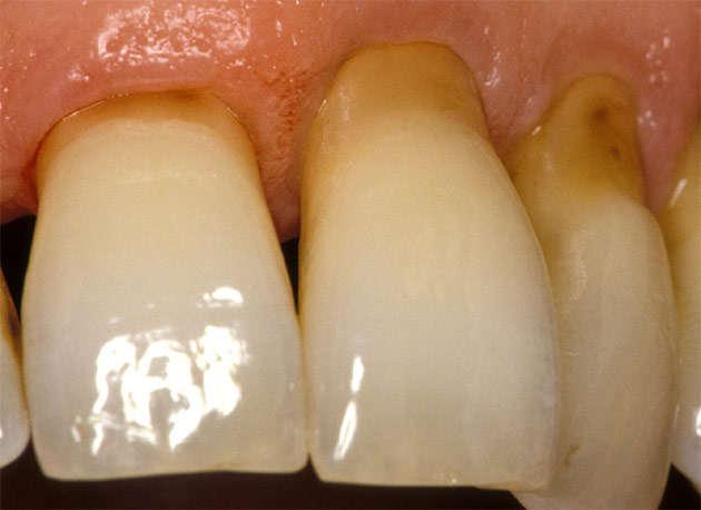 Teeth_abrasion