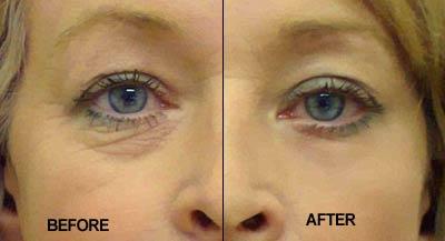 after-collagen_Cream_XYZ