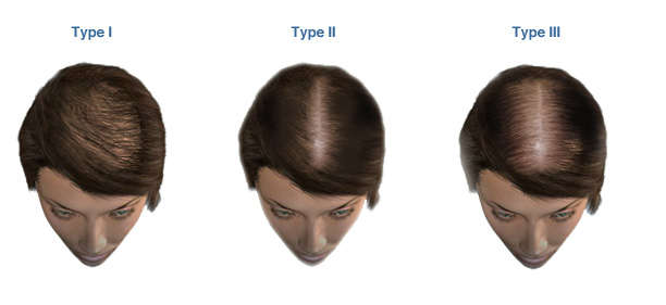 female hair thinning stages