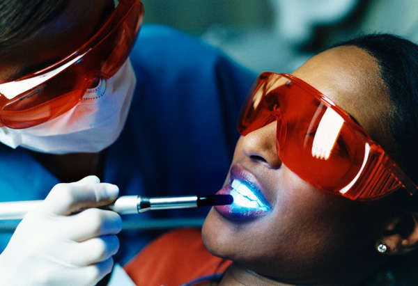 teeth whitening at office