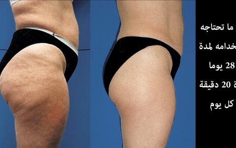 ازالة تشققات الجلد و تمدد الجلد في 28 يوم