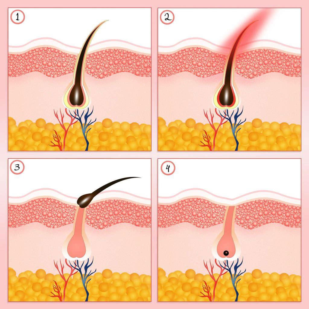 Hair-Removal-For-Women-Men