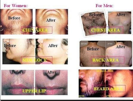 Hair Removal_Cream_Results