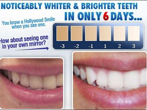 How does teeth whitening kit works at home