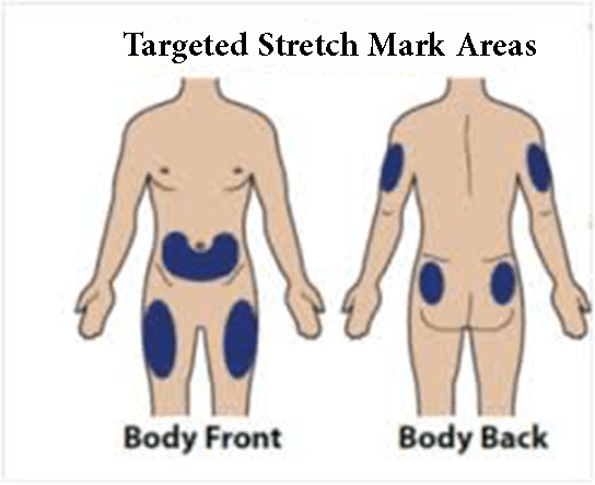 Places of stretch mark points