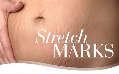 Stretch-Marks-CREAM