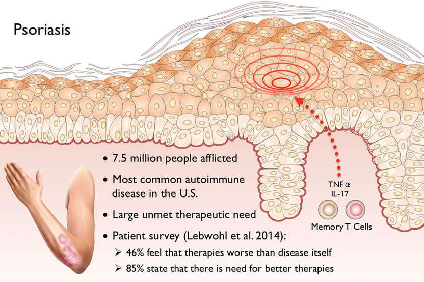 Why does Dermasis Psoriasis Cream works