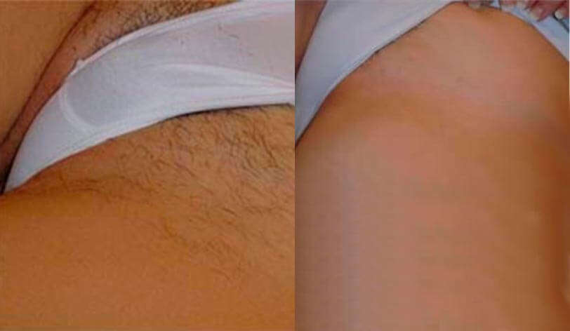 before and after with dermology hair removal cream