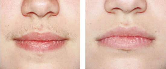 before and after with lip line with dermology hair removal cream.jpg