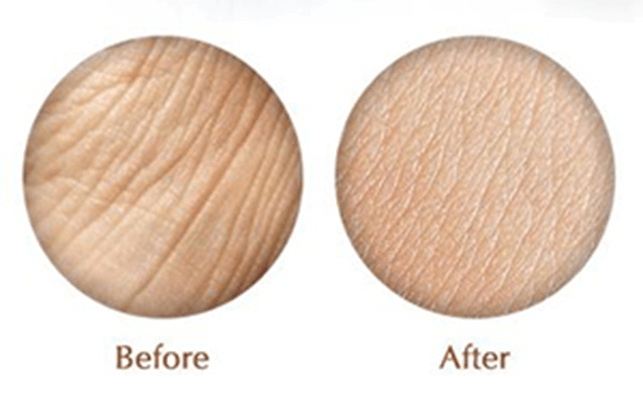 best antiwrinkle cream before and after - California Bioenergy