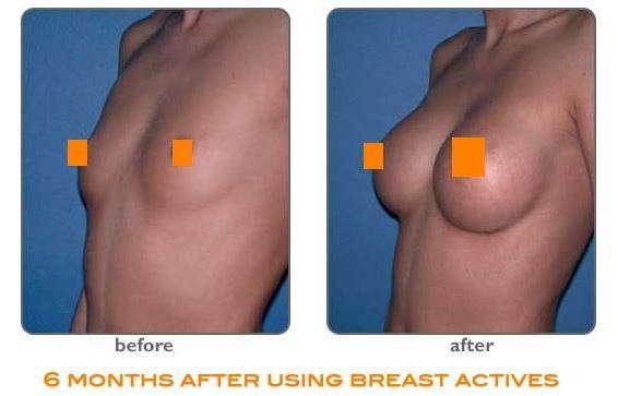 breast-actives-pills-and-cream حبوب تكبير الصدر