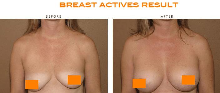 breastactives-نتائج قبل و بعد تكبير الصدر بالكريم