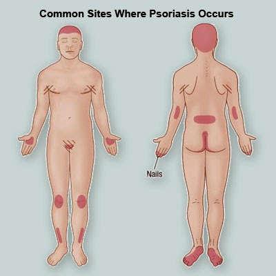 common-sites-psoriasis skin -on-body