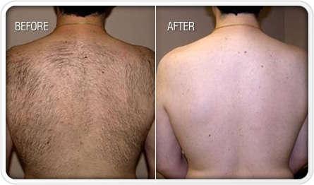 dermology-hair-remova-cream-before-after
