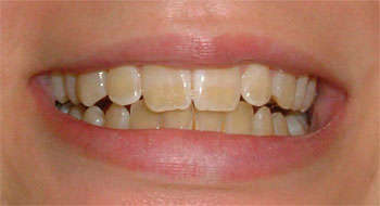 stained teeth prior to whitening