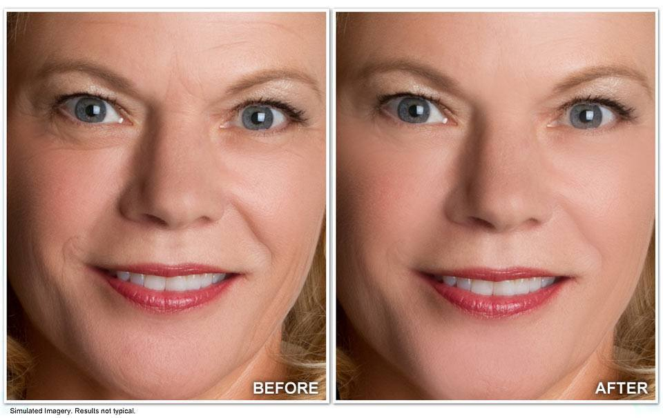 Revitol-Anti-Aging-Cream-Before-and-After