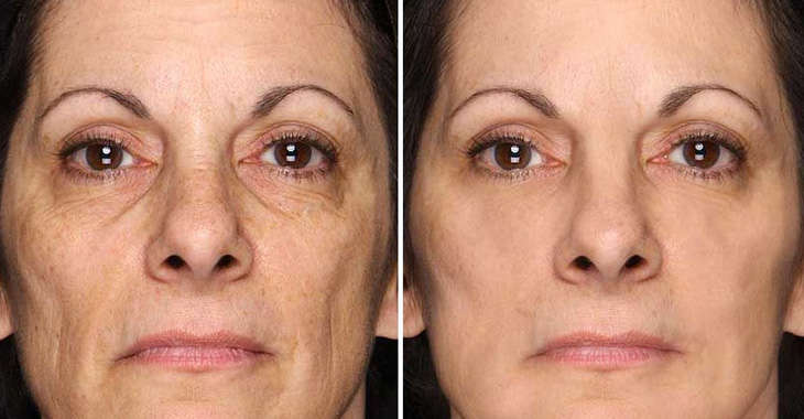before-after-Revitol Best Face Moisturizer for dry skin 2