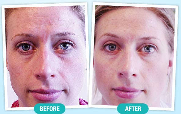 before-after-Revitol Best Face Moisturizer for dry skin