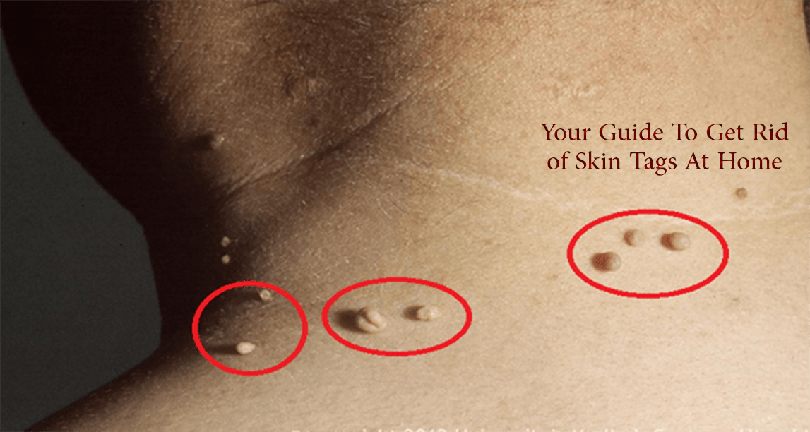 Remove Skin Tag Permanently At Home Without Surgery With Revitol Skin Tag Remover