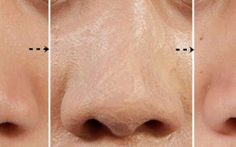 how to shrink pores on nose pore minimizer