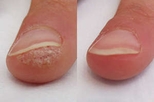 Before and AFter Wartrol Wart Remover