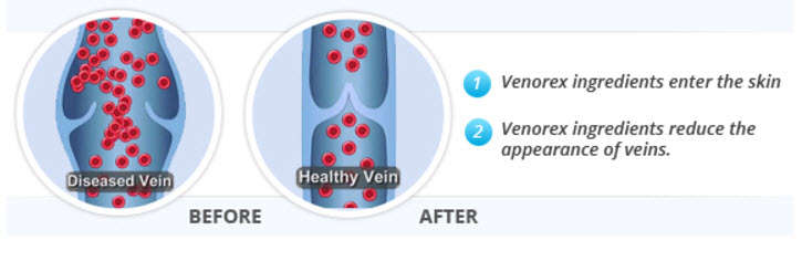 How Does Venorex Work