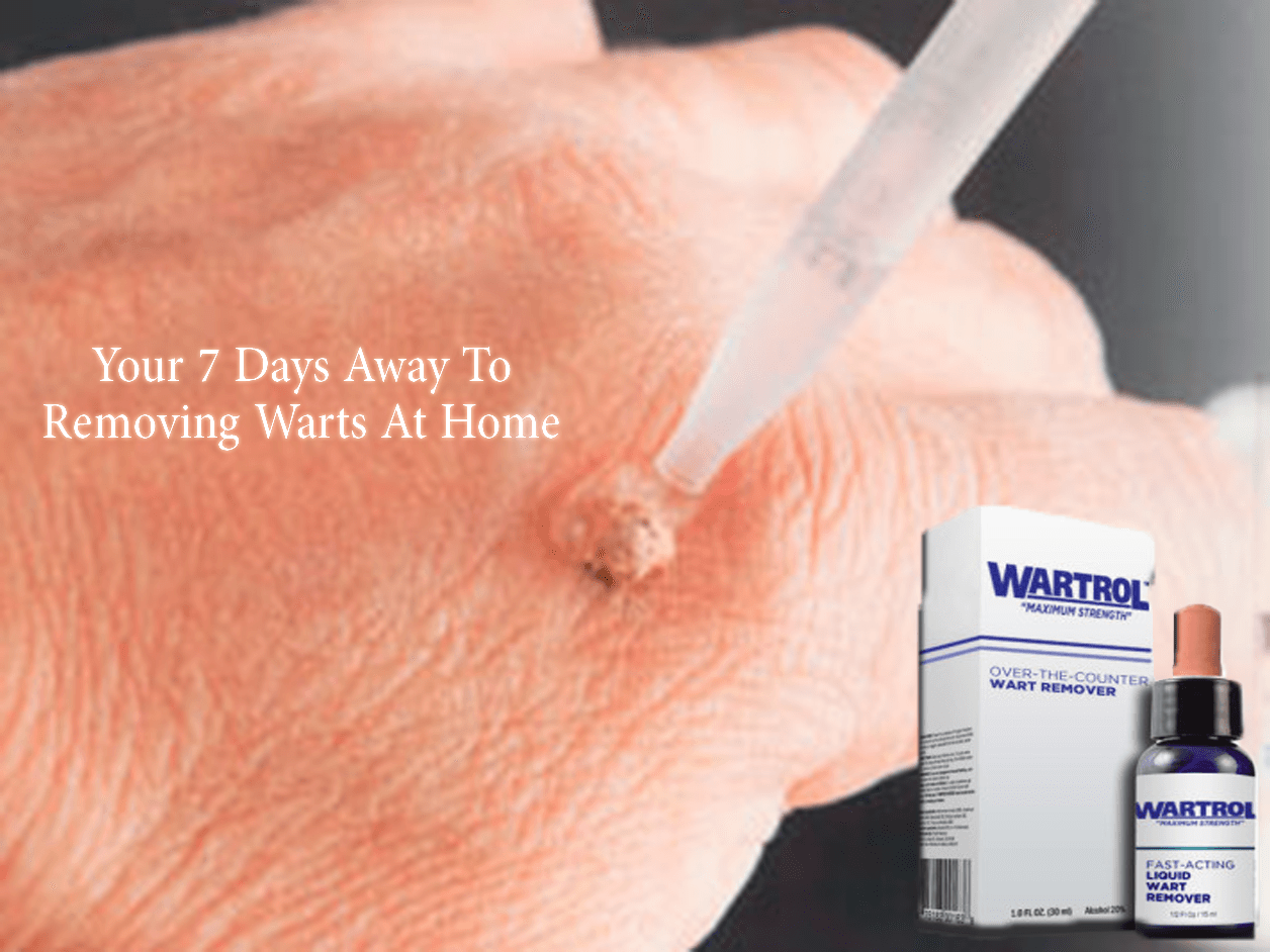 Wart Remover in 7 days with Wartrol