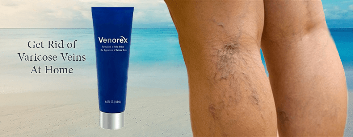 Venorex – #1 Choice For Men & Women's Cream For Varicose Veins