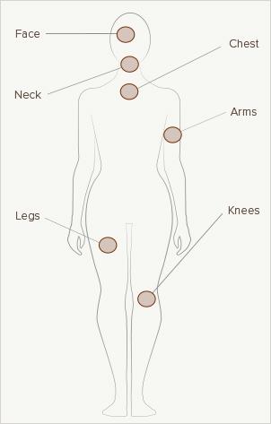 Body Crepey Skin