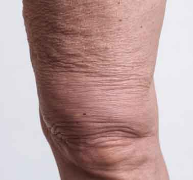 Crepey Skin on the knees area and how to treat it