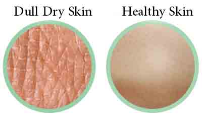 Dull skin vs healthy normal skin