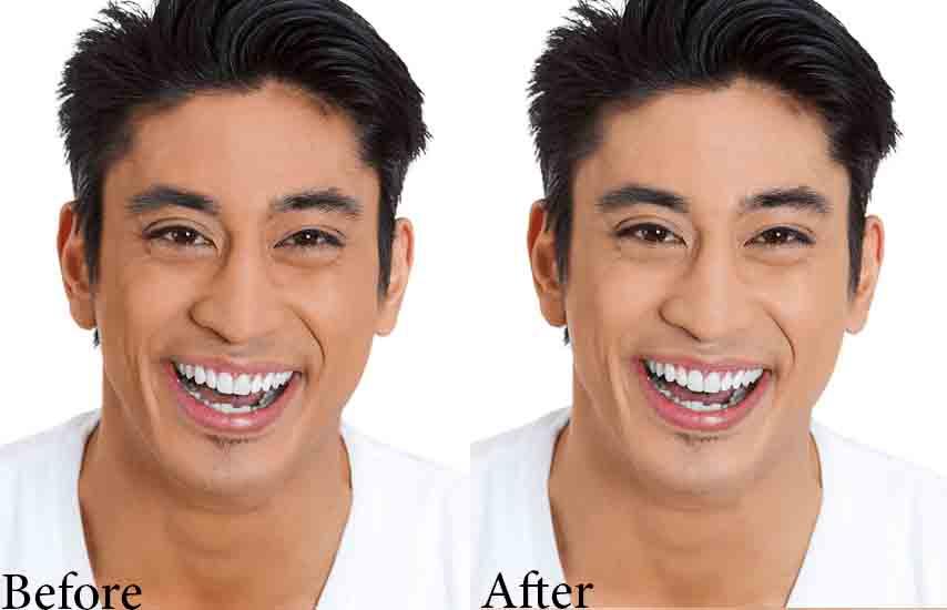 before-after_skin whitening for men Zeta White