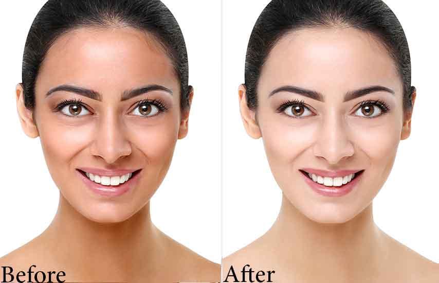 before-after_skin whitening zeta white