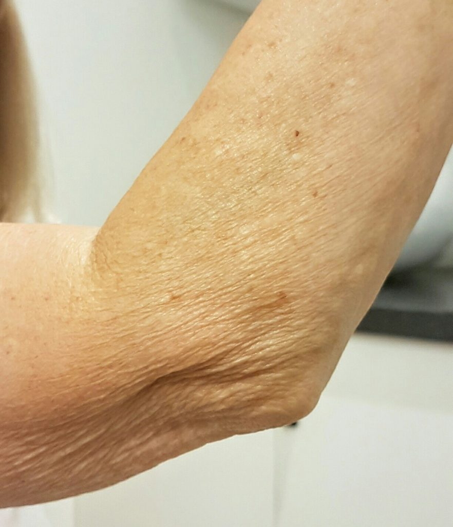 best treatment for arms of crepey skin